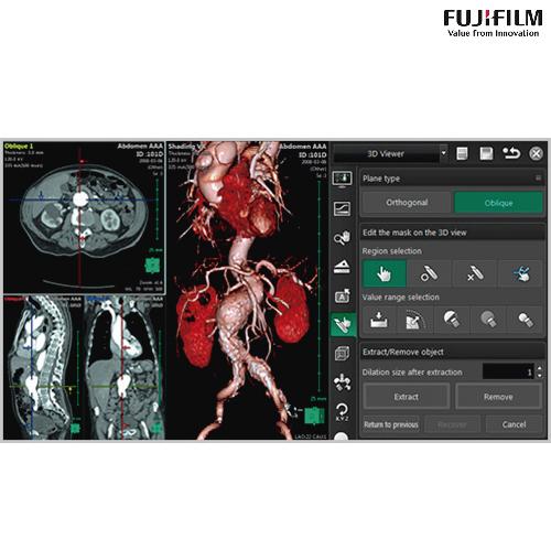 SynapsePacs3d-fujifilm